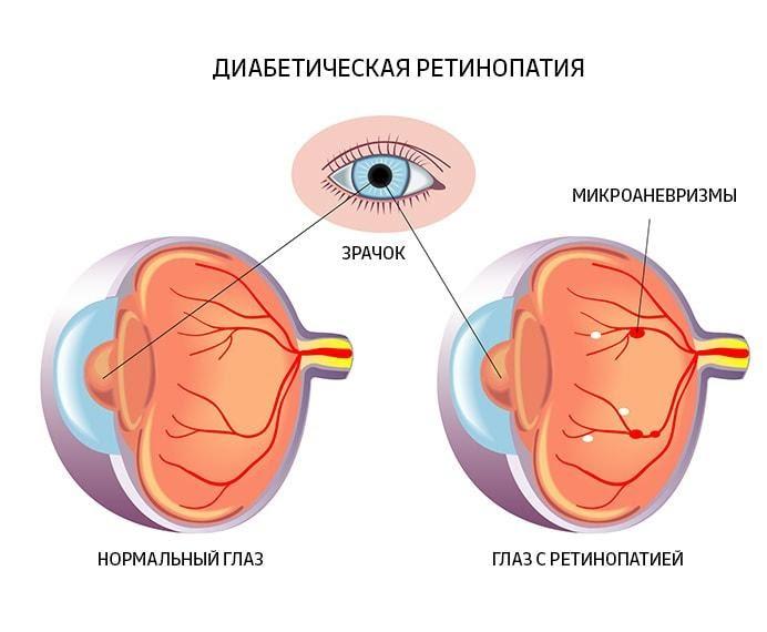 Діабет і зір